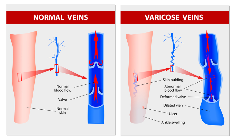 what are varicose veins and how to treat them Varicose Veins On Ankles Varicose Veins in Arms